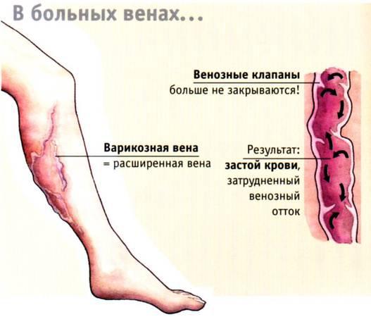 Варикозная болезнь лечение лекарства