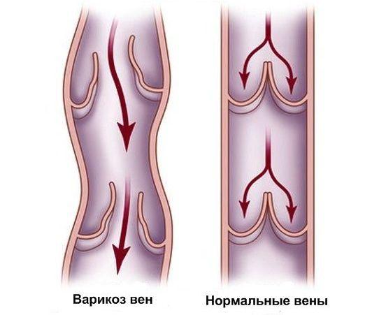 Какой компресс делать при тромбофлебите